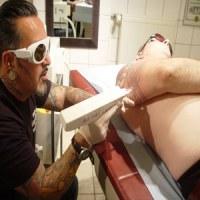 Laser Yag détatouage lésions pigmentaires